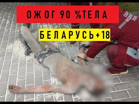 Момент самосожжения возле Смолевичского РОВД в знак протеста Мужчина находится в реанимации 90%