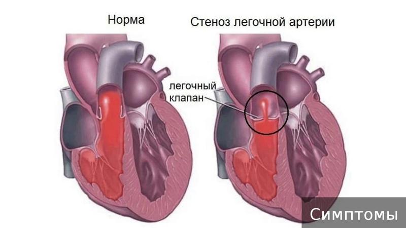 Стеноз легочной артерии Как лечить стеноз легочной артерии