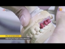How to use Cobalt Chrome Co Cr casting abutment Alpha Bio Tec