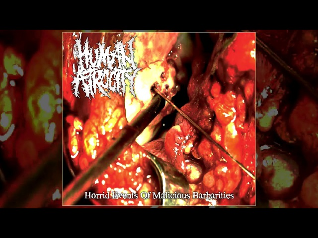 Human Atrocity - Horrid Events Of Malicious Barbarities FULL EP (2017 - Goregrind / Gorenoise)