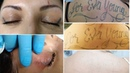 Tattoo removal before and after. Eliminar tatuajes antes y despues. BORRATATU