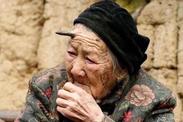 У китайской бабульки, которой уже 101 год вдруг вырос рог на лбу! А теперь представьте такую мутацию в средневековье, сразу начнешь верить в существование