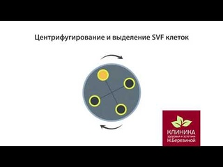 ACP SVF Arthrex терапия
