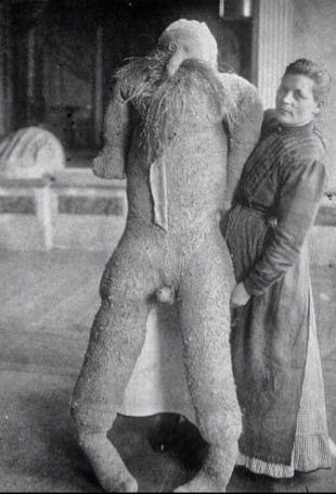 Пациентка психбольницы сделала себе мужчину из соломы. 1910 год.