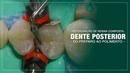 Restauração de Resina Composta em Dente Posterior - Do Preparo ao Polimento