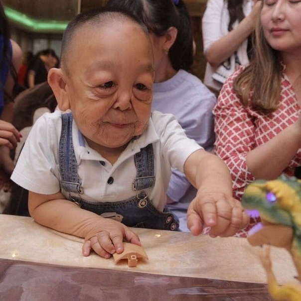 Мальчика Ернара называют «казахским Бенджамином Баттоном». Несмотря на то, что ему нет даже 10, он выглядит как пожилой. Все из-за вялой кожи.